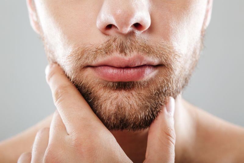 barba alopecia